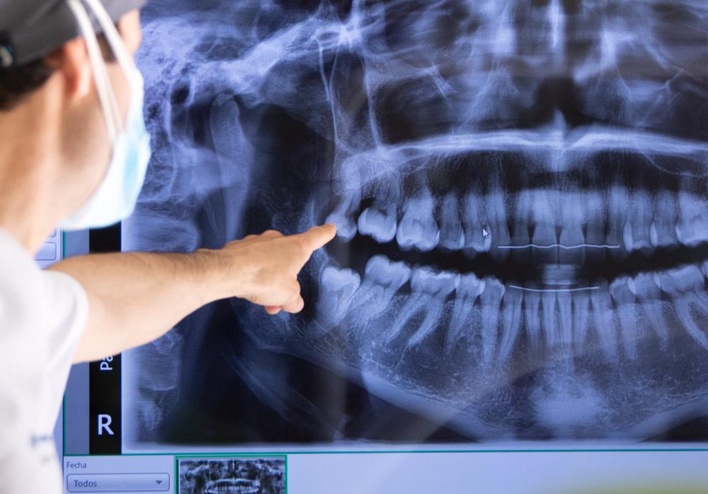 Radiografía · Clínica de Ortodoncia Exclusiva